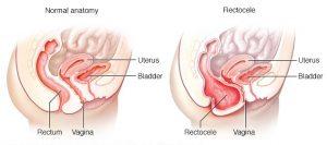uterine-prolapse-laparoscopic-mesh-repair