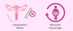 IVF, infertility treatment